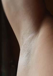 Il pigmentary nota su una mano